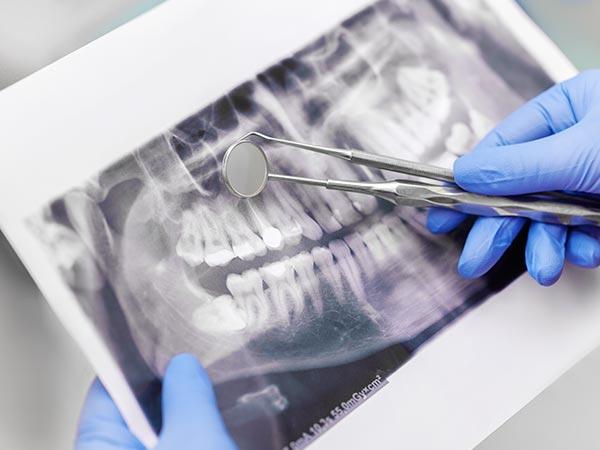 Endodontista