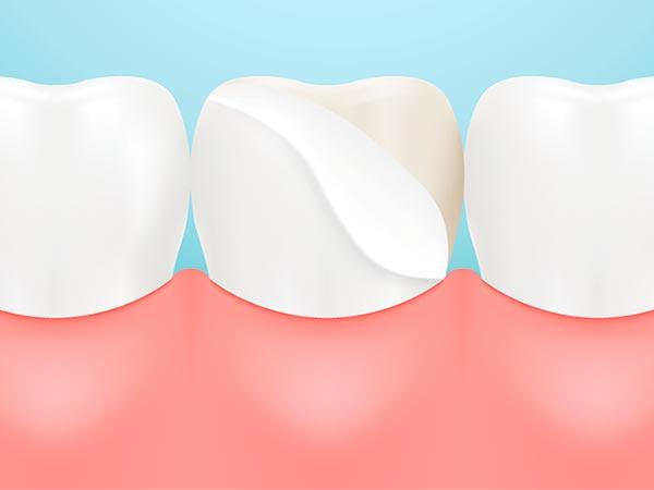 Implantes e próteses para os dentes