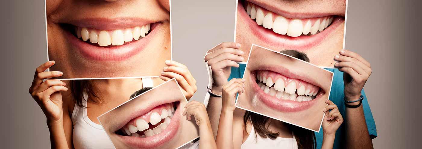 Aparelho Dental, Estética Bucal, Endodontia, Extração de dente, Clareamento, Prótese e mais